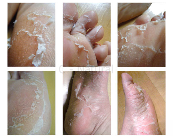 butterfly foot peel instructions
